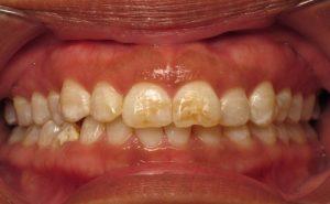 لکه های روی دندان